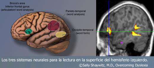 external image tres-%C3%A1reas-terminado.png